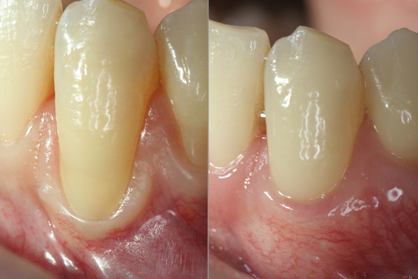 Two closeup of a tooth showing difference in recovery process of regular vs microsurgery treatment
