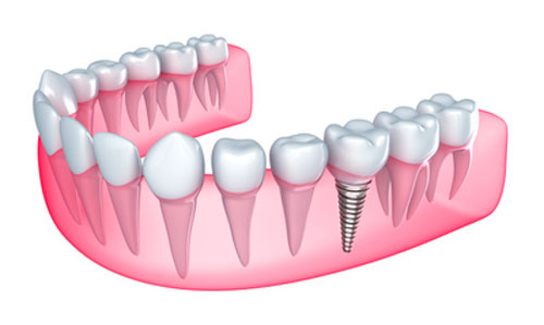 Symptoms Your Mouth is Rejecting Dental Implants