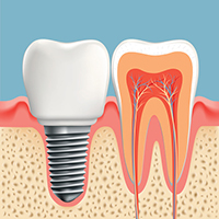 Dental Implant diagram at Oregon Periodontics, P.C.
