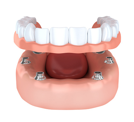 Dentures with Implant diagram at Oregon Periodontics, P.C.
