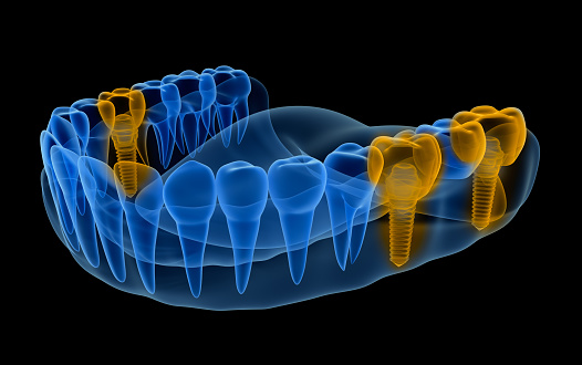 Multiple single tooth Implants x-ray diagram at Oregon Periodontics, P.C.