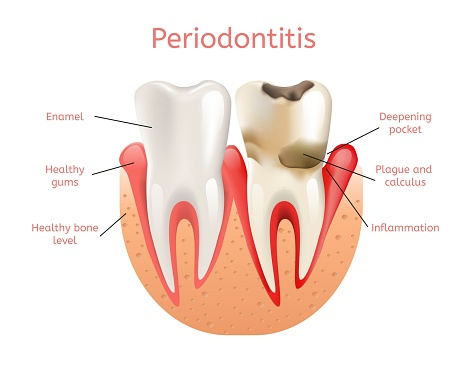 Diagram of periodontitis at Oregon Periodontics, P.C.