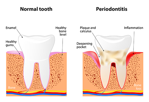 Periodontal Disease diagram at Oregon Periodontics, P.C.