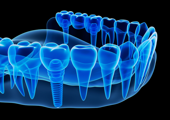 Multiple teeth replacement x-ray at Oregon Periodontics, P.C.